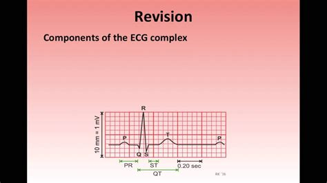 ECG changes associated with electrolyte disturbances - YouTube