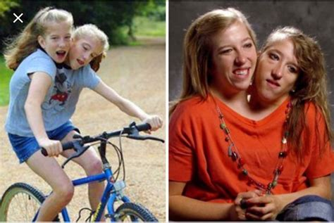 What Famous Conjoined Twins Abby And Brittany Hensel are