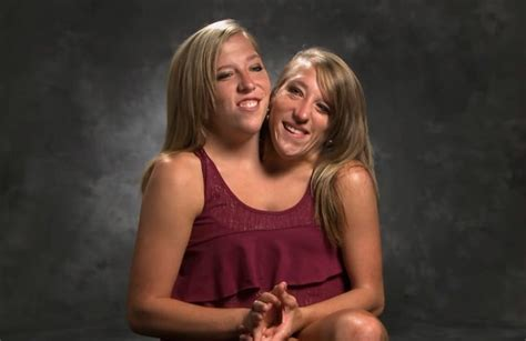 The Life of Abby & Brittany Hensel — Conjoined Twins – The