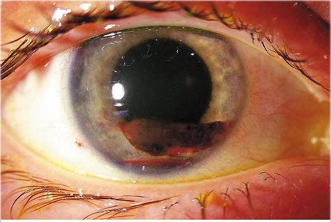 Medical Pictures Info – Hyphema
