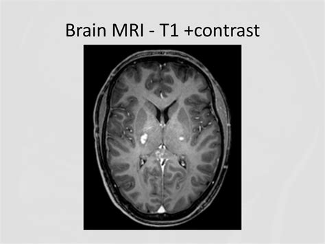 An Uncommon Brainstem Lesion in a Young Patient