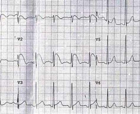 Ischemic Brugada syndrome - YouTube
